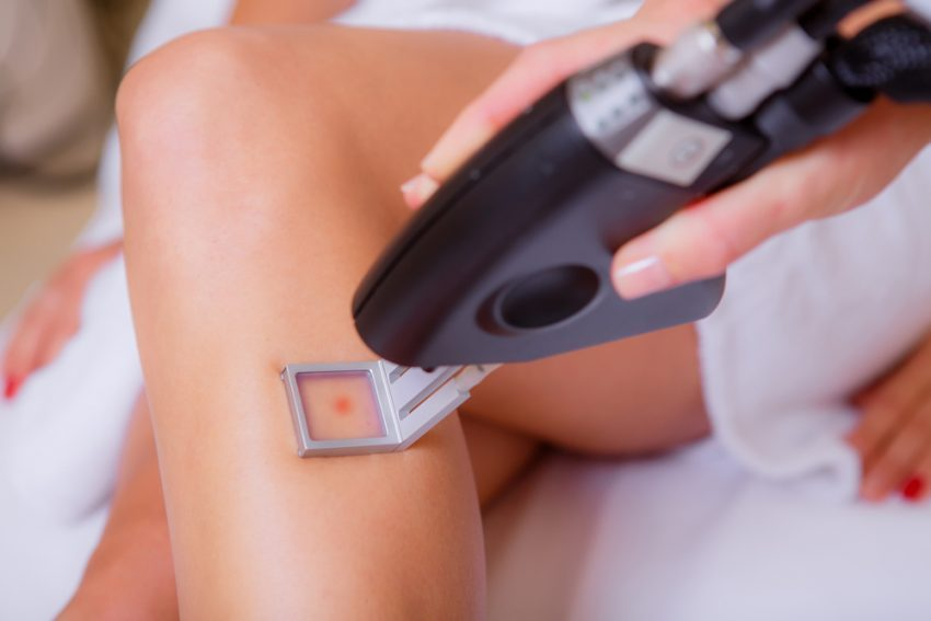 Hair Removal Trends You Need To Try